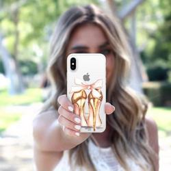CASETIFY Snap Case Golden Heels for iPhone XS/X